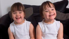 Downs Syndrome Twins Are One In A Million