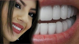 How To Have Natural White Teeth In 3 Minutes - Works 100