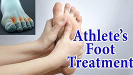 Athlete's Foot Fungal Infection Home Treatment - 5 Ways to Treat And Avoid Athlete's Foot at Home