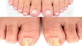 Fungal Nail Infection - 3 Simple Home Remedies to get rid of Toenail Fungus - Instant Relief