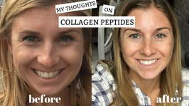 My Thoughts on Collagen Peptides I Benefits Plus My Before and After