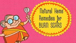Burn Scars - How To Get Rid Of Burn Scars And Marks At Home - Top 5 Home Remedies for Scar Removal