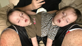 Conjoined Twins Are A Medical Miracle - Born Different