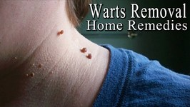 Warts - 5 Simple Home Remedies to Get Rid of Facial Warts Naturally