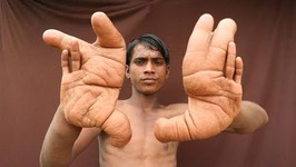 The Boy With The Giant Hands