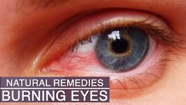 Eye Strain And Burning Eyes Home Remedies - 5 Natural Remedies for Eye Strain, Tired and Burning Eyes