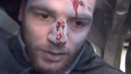 Syrian Journalist Wounded by Blast While Reporting on Strikes in East Ghouta