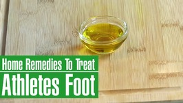 3 Best Home Remedies To Treat Athlete's Foot - Itching, Scaling And Redness