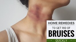 How to Heal Bruises Naturally With Home Remedies - Proven Home Remedies to Get Rid of Bruises Quickly