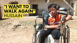 A Syrian boys story after a landmine explosion