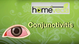 Treat Conjunctivitis with Baking Soda