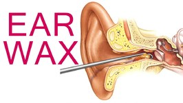 Ear Wax Removal - 5 Safe Home Remedies to Remove Ear Wax - Get Rid of Clogged and Blocked Ears