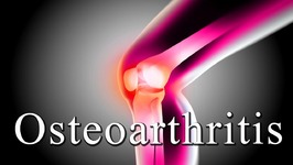 Osteoarthritis Treatment - Knee And Hip - Natural Ayurvedic Home Remedies for Knee Osteoarthritis