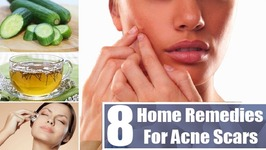 05 Most Effective Ways To Remove Acne Scars And Pimple Marks - Deep Scars And Pimple Marks Removal