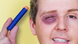 Nerf Eye Accident