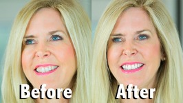 White With Style Teeth Makeover! Teeth Whitener Kit Review