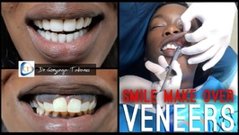 My Colombian Smile Makeover - Non Prep Veneers W/ Clinicas Matizz