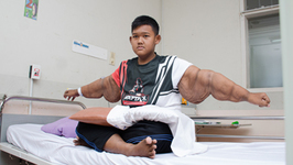 'Worlds Heaviest Kid' Has Saggy Skin Surgery- Truly