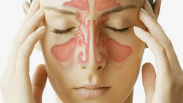 Sinus Infection Symptoms, Remedies and Treatment - Dr. Jordan Josephson