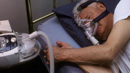 What is Sleep Apnea - Causes & Symptoms of Sleep Apnea