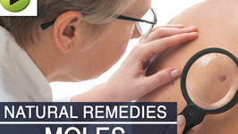 Skin Care : Moles - Natural Ayurvedic Home Remedies