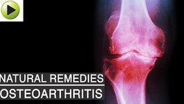 Aches & Pains : Osteoarthritis (Arthritis or Joint Pain) - Natural Ayurvedic Home Remedies
