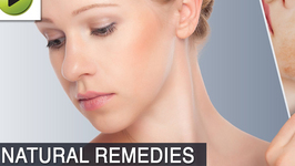 Skin Care : Burns - Natural Ayurvedic Home Remedies