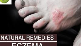 Skin Care : Eczema - Natural Ayurvedic Home Remedies