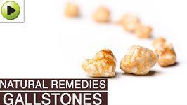 Gallstones - Natural Ayurvedic Home Remedies