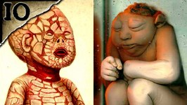 10 Horrible Birth Defects - Twisted Tens - 17