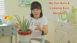 My Sun Burn & Cooking Burn Remedy!