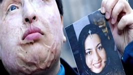 Iran Acid Attacks against Women Spark Protests