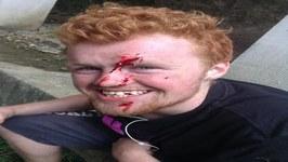 How I F--Ked Up My Face