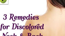 Natural Home Remedies for a Discolored Neck and Back