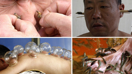 Weird Asian Folk Remedies to Improve Your Health
