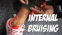 Internal Bruising